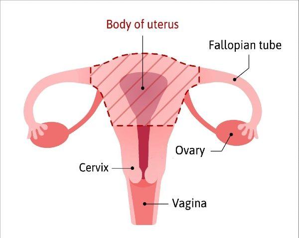 عملية استئصال الرحم
