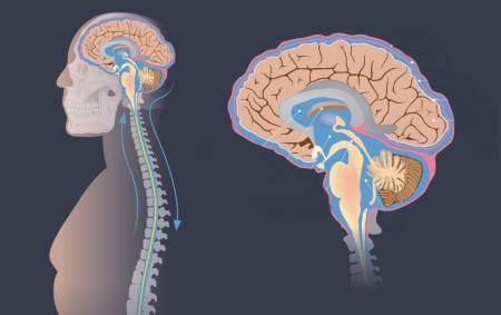 عملية تركيب صمام المخ