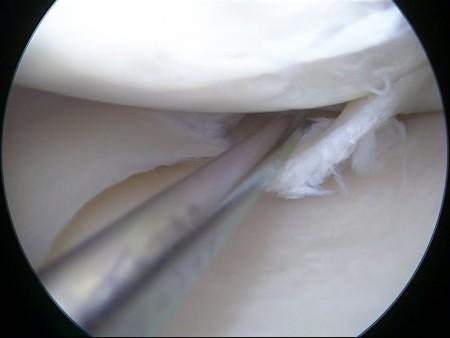 اعراض قطع غضروف الركبة