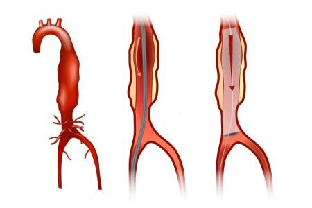 تمدد الشريان الاورطي الصدري