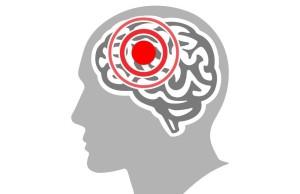 عملية استئصال اورام المخ