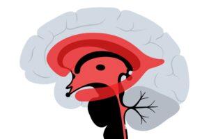 عملية قسطرة المخ